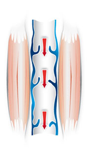 Zastawki nie funkcjonują właściwie; przepływ krwi jest zaburzony, coprowadzi do nagromadzenia się krwi w żyłach.